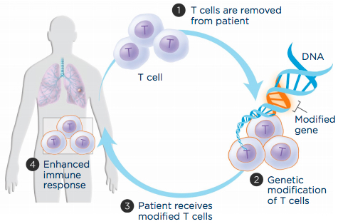 car t cell review 2017