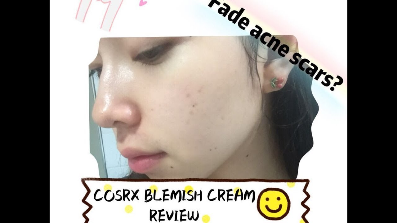 dermagist acne scar fading cream review
