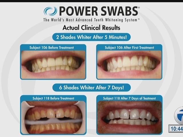 power swabs for teeth reviews